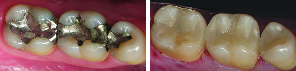 Same-Day Tooth Restoration